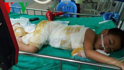 Bé Việt được thính giả hỗ trợ tiền điều trị vết bỏng